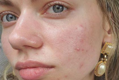 Pamiętacie jeszcze, jak wygląda naturalna skóra? Instagram i globalne marki przypominają i zachęcają do odejścia od kultury wstydu